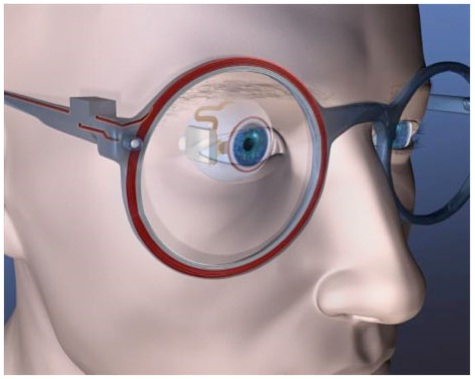 an artists impression of an electric eye